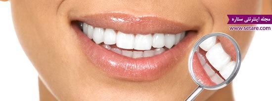 اصلاح طرح لبخند - طراحی لبخند با روش کامپوزیت ونیر